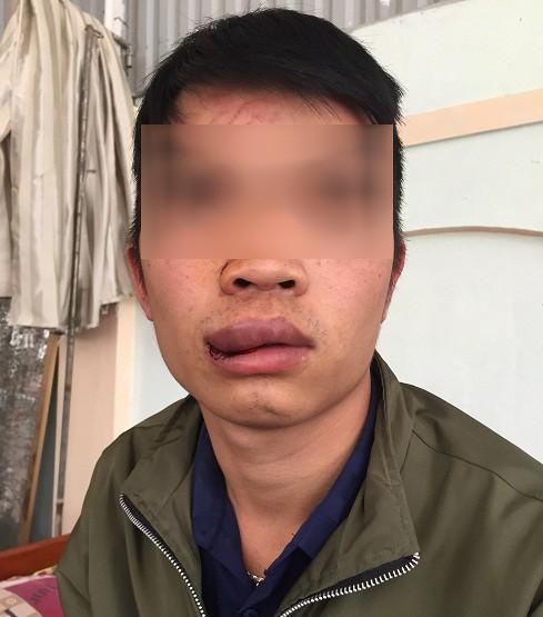 Lái xe, phụ xe bị côn đồ đánh nhập viện, chủ xe làm đơn kêu cứu - Ảnh 1.