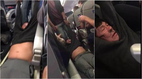 Vụ việc người đàn ông 69 tuổi bị kéo lê khỏi máy bay của hãng United Airlines khiến dư luận bức xức. Ảnh: Facebook