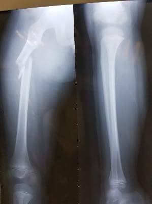 Ảnh chụp X -quang xương chân bị gãy của học sinh Trần Chí Kiên