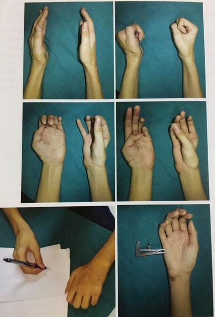 Hai bàn tay đứt rời hoàn toàn phục hồi kỳ diệu sau ghép nối - Ảnh 3.