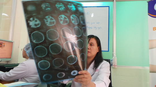 Theo mẹ đi phụ việc nhà, bé gái ngã chấn thương sọ não - Ảnh 1.