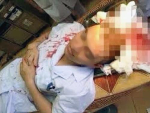 Bác sĩ Lê Quang D. bị bố bệnh nhi hành hung phai khâu 7 mũi trên đầu - Ảnh: ANTĐ