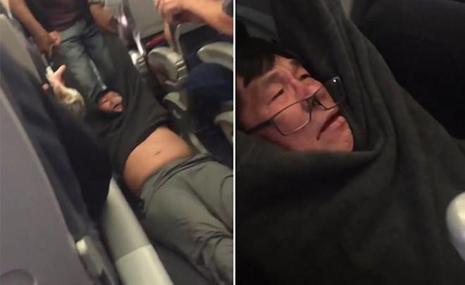 Hành khách bị thương, chảy máu trong quá trình cưỡng chế. Ảnh: New York Daily News.