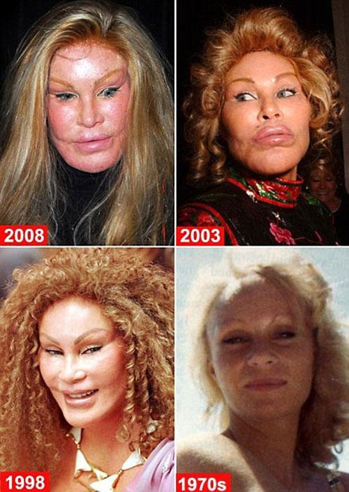Gương mặt của Jocelyn ngày càng biến dạng sau nhiều năm phẫu thuật thẩm mỹ.
