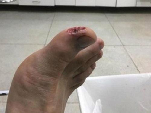 Cá ăn thịt tấn công hàng loạt du khách trong resort Brazil - Ảnh 2.