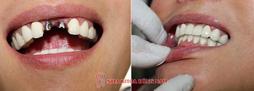 Tái tạo răng thật bằng công nghệ cắm ghép Implant - Ảnh 2.
