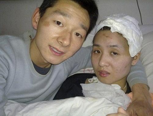 Cảm phục chàng trai quyết cưới bạn gái ngơ ngẩn vì tai nạn - Ảnh 2.