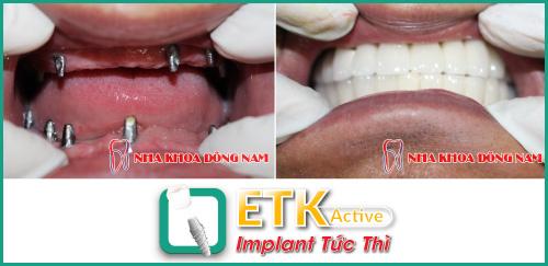 Kết quả cấy ghép Implant ETK Active tại Nha Khoa Đông Nam