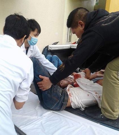 Cấp cứu những người bị thương trong vụ tai nạn tại Uông Bí (Quảng Ninh)