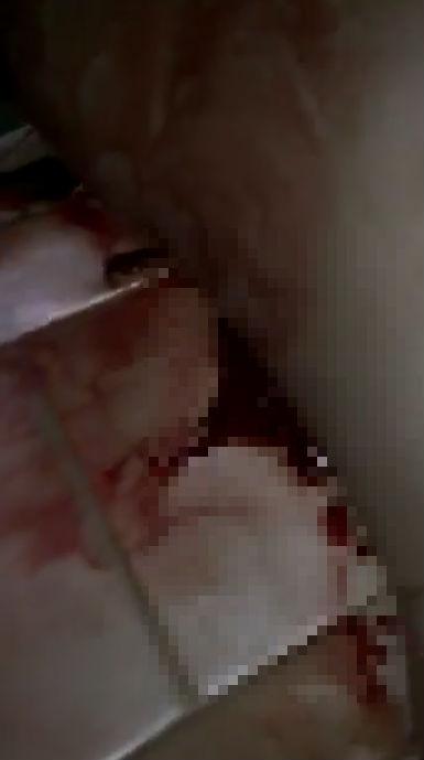 Mất máu rất nhiều nhưng rất may tài xế đã qua cơn nguy kịch