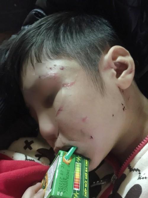 Video clip: Trần tình của người mẹ có con bị bố và mẹ kế bạo hành dã man - Ảnh 5.