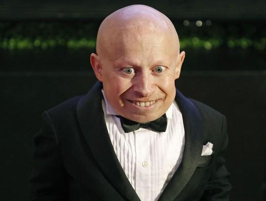 Chết 6 tháng, quỷ lùn trong Harry Potter được xác định tự tử - Ảnh 2.