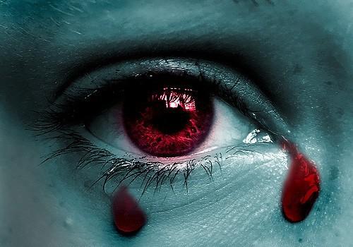 Giọt lệ máu – dấu hiệu bệnh cực hiếm và nguy hiểm - Ảnh 1.