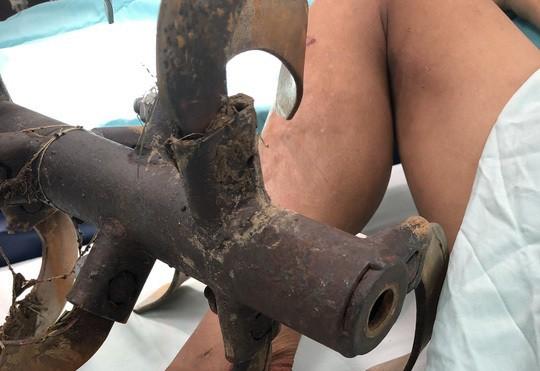 Anh nông dân nhập viện cùng chiếc lưỡi máy cày cắm ở chân - Ảnh 1.