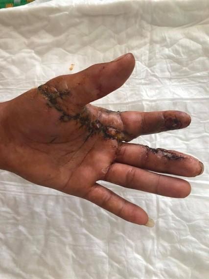 Nối thành công gần nửa bàn tay thợ mộc bị đứt lừa - Ảnh 1.