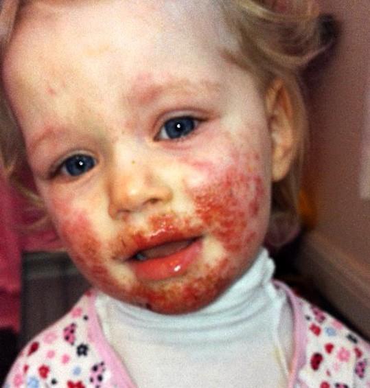 Bé gái bị lây bệnh tình dục vì nụ hôn của cha - Ảnh 2.