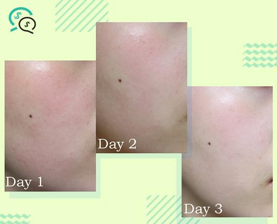 Phục hồi làn da với ampoule rau má trị mụn và làm mờ thâm - Ảnh 6.