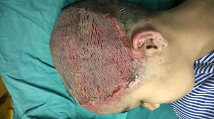 Thiếu nữ 17 tuổi bị hoại tử toàn bộ da đầu vì uốn tóc mừng sinh nhật - Ảnh 2.