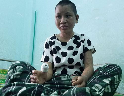 Vụ tra tấn dã man ở Gia Lai: Y Nhiêu về quê điều trị - Ảnh 1.