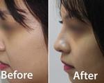 Tiêm filler nâng mũi, một phụ nữ bị biến chứng - Ảnh 2.