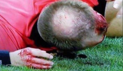 Trọng tài biên Europa League bị ném vỡ đầu, chảy máu bê bết - Ảnh 1.
