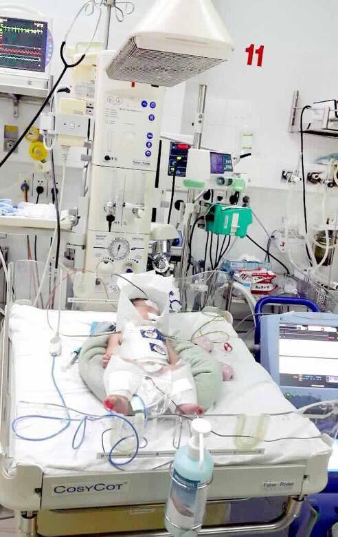 Thai phụ vỡ gan nguy kịch, chuyển dạ khi thai mới hơn 8 tháng - Ảnh 1.