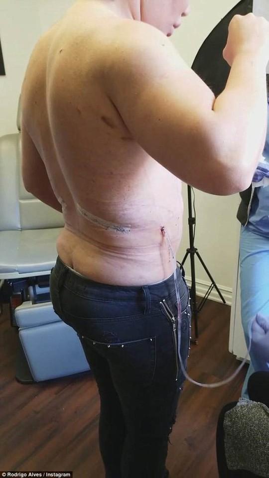 Gặp họa vì phẫu thuật cắt bỏ xương sườn để eo bé - Ảnh 4.