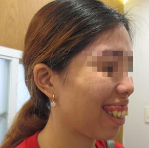 Mở băng sau cắt hàm, nữ công nhân không tin vào gương mặt mình - Ảnh 1.