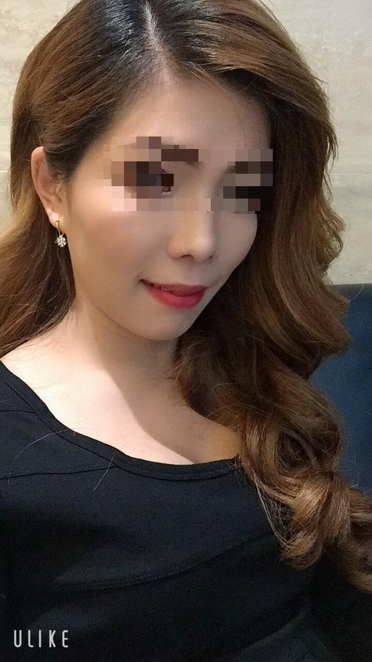 Mở băng sau cắt hàm, nữ công nhân không tin vào gương mặt mình - Ảnh 3.