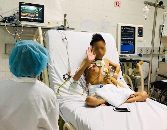 Bệnh nhân bất ngờ được xuất viện sau gần 2 tháng ghép phổi từ người cho chết não - Ảnh 2.