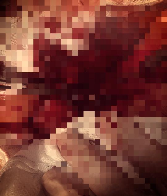 Người phụ nữ suýt chết do xương cá nhọn đâm vào ổ bụng - Ảnh 1.