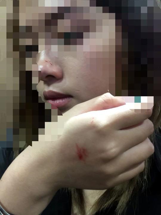 Giám đốc Công an Hà Nội lên tiếng vụ nữ sinh viên bị sàm sỡ trong thang máy - Ảnh 2.