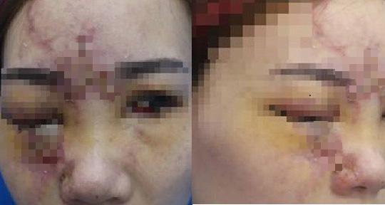Liên tiếp mù mắt sau tiêm filler không đúng chỗ - Ảnh 1.