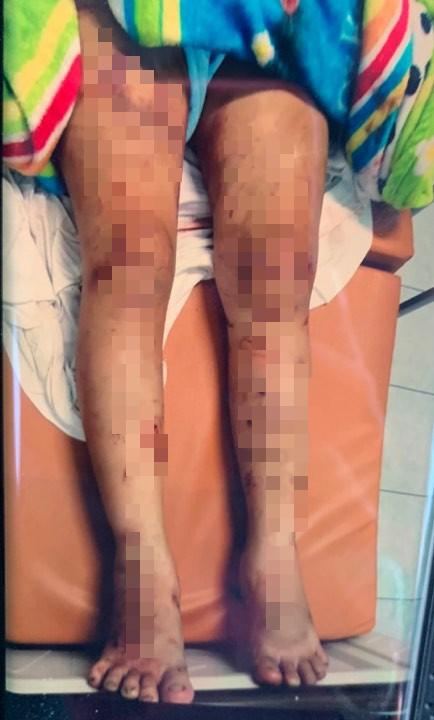 Tình tiết man rợ vụ cô gái 18 tuổi bị tra tấn đến sẩy thai ở Bình Chánh - Ảnh 1.