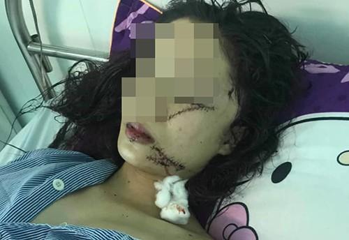 Vụ cô gái xinh đẹp 18 tuổi bị rạch mặt: Công an thông tin bất ngờ về nguyên nhân - Ảnh 1.