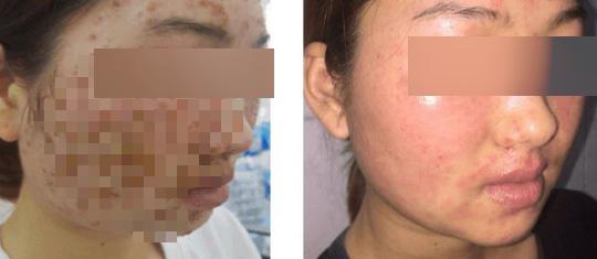 Da mặt cô gái sùi như vỏ cây sau khi dùng bột mua trên mạng để rửa mặt - Ảnh 1.