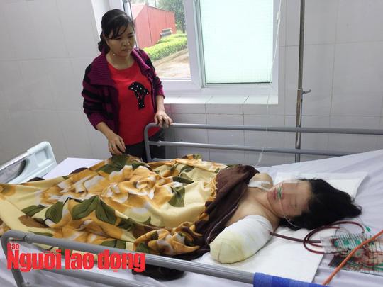 Chạy xe máy 130km đi dạy học, cô giáo bị tai nạn phải cắt lìa tay - Ảnh 1.