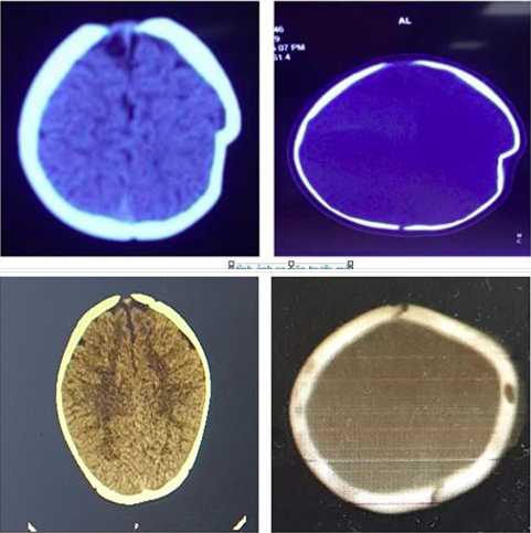 Ngã từ xe tập đi, bé gái 8 tháng tuổi bị lún sọ não - Ảnh 1.