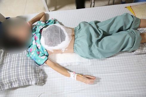 Ngực lở loét, hoại tử vì thầy lang bảo cứ chờ khối u vỡ - Ảnh 1.