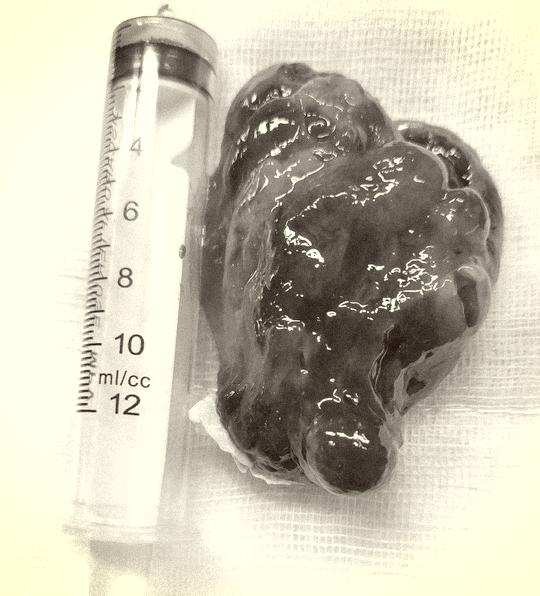 Phẫu thuật xuyên đêm lấy khối u khổng lồ như đầu con bê trong tim cụ ông - Ảnh 2.