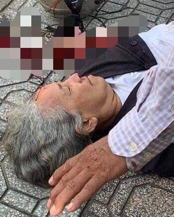Người phụ nữ ngã xuống đường bị xe cán nát mất tay vì một tài xế mở cửa bất cẩn - Ảnh 1.