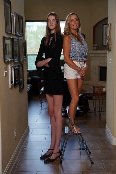 Thiếu nữ có đôi chân dài miên man: 1,35 m - Ảnh 4.