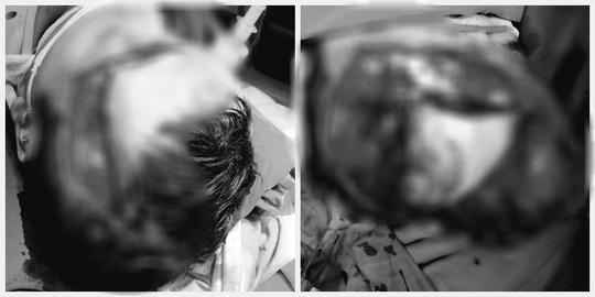 Người đàn ông bị thang máy kẹp vỡ hộp sọ - Ảnh 2.