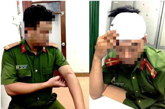 Hai công an phường ở Đà Nẵng bị tấn công khi làm nhiệm vụ - Ảnh 1.