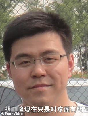 Covid-19: Trở về từ cửa tử, làn da của 2 bác sĩ Trung Quốc chuyển màu đen kịt - Ảnh 3.