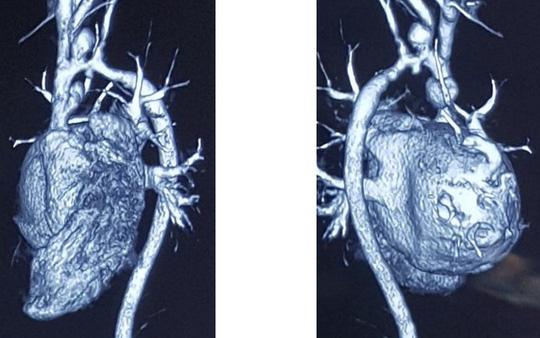Bé trai 8 tuổi mắc bệnh hiếm gặp được thay động mạch từ người cho chết não - Ảnh 1.