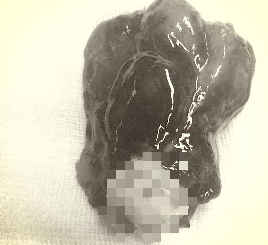 Căng thẳng lấy khối u to bằng quả trứng vịt trong tim người phụ nữ - Ảnh 1.