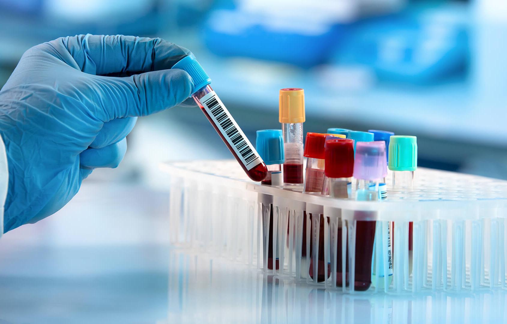 Phương pháp giá rẻ xác định 5 loại ung thư trước đến 4 năm - Báo Người lao  động
