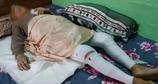 Cụ bà 82 tuổi quê Bình Định vượt qua tử thần một cách ngoạn mục - Ảnh 1.