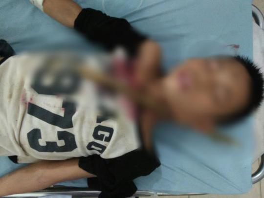 Trèo cây ngã, bé trai 12 tuổi bị cành cây đâm xuyên cổ - Ảnh 1.